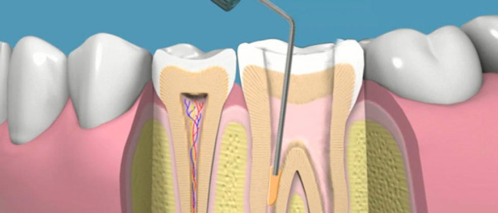 Fases en la Endodoncia