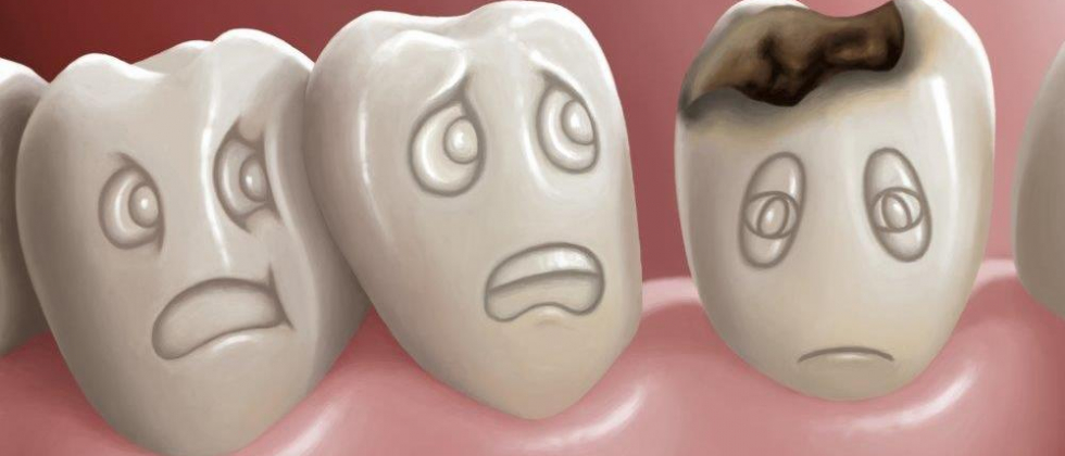 DISCOVER WHATS YOUR DENTAL CARIES RISK