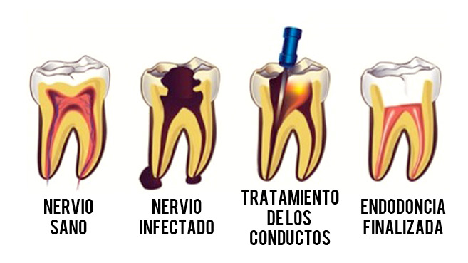 endodoncia clinica prario