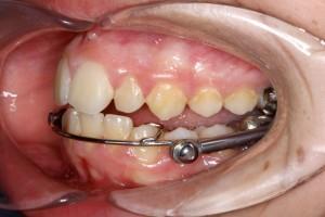 ortodoncia4