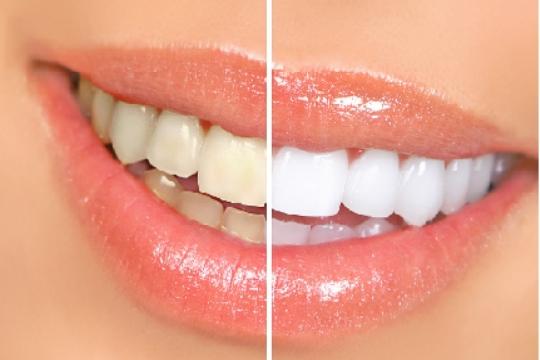 blanqueamiento-de-dientes-casero